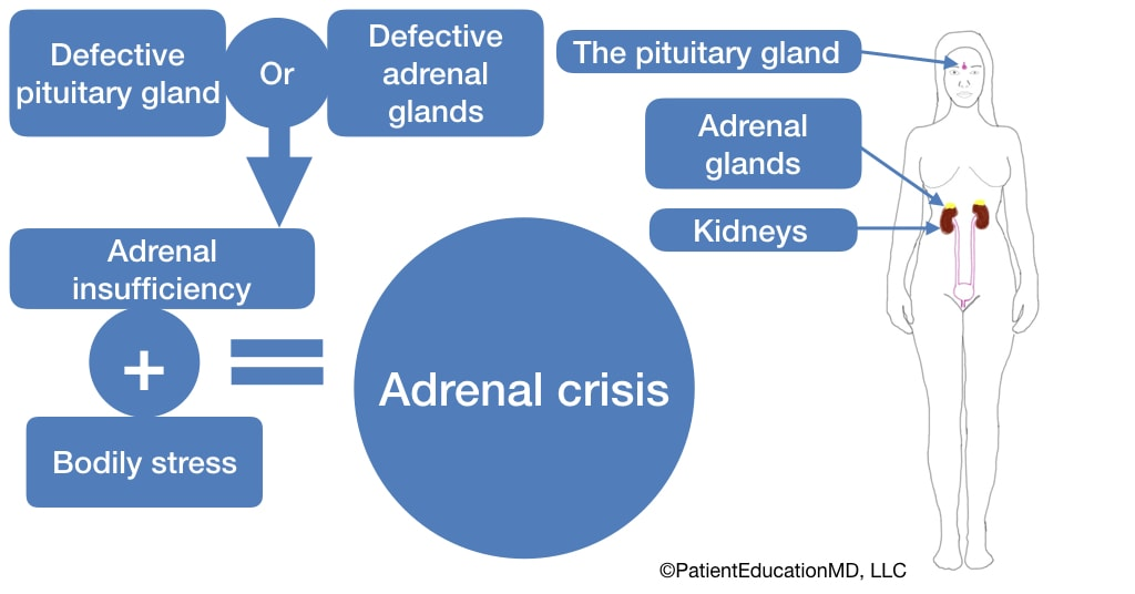 A diagram showing how a defective pituitary or adrenal gland can cause adrenal insufficiency and, along with bodily stress, cause an adrenal crisis.