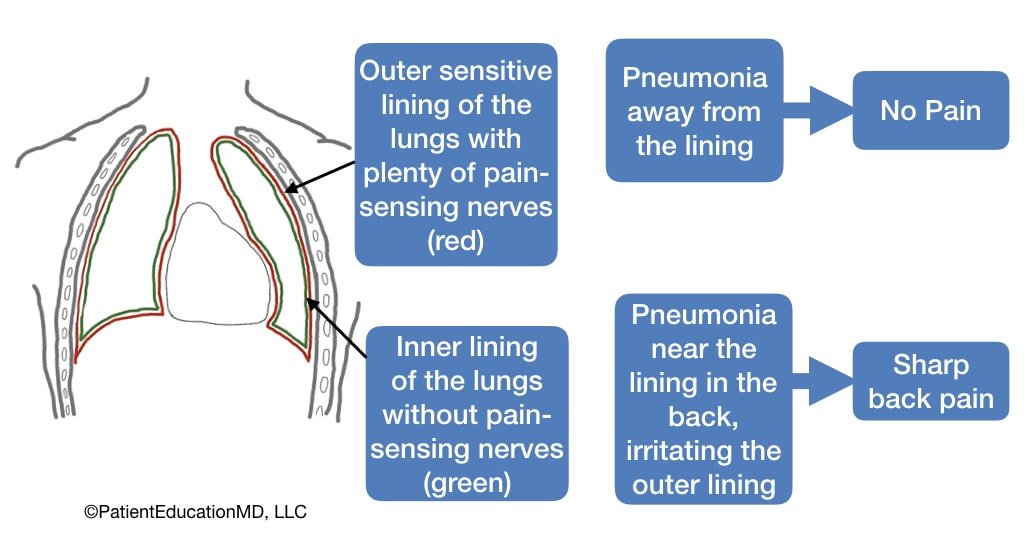 A diagram showing that pneumonia away from the outer lining causes no pain, but pneumonia near the outer lining causes pain.