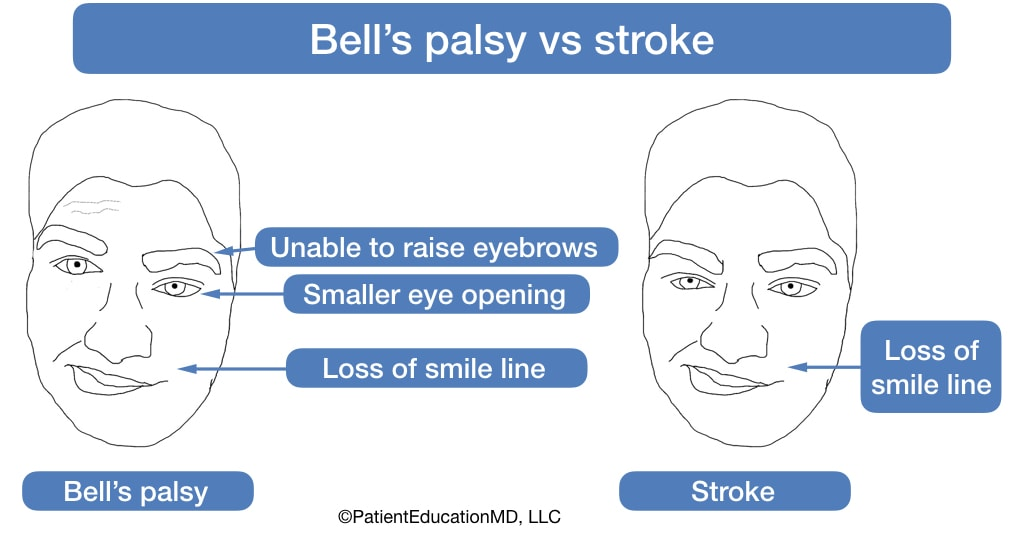 Comparing faces with Bell's palsy vs a stroke