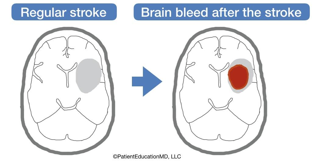 A diagram showing brain bleed after a regular stroke