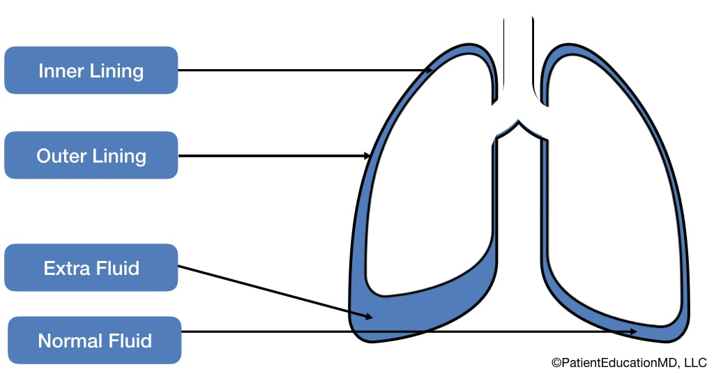 Diagram showing the location of fluid in the lungs from pneumonia