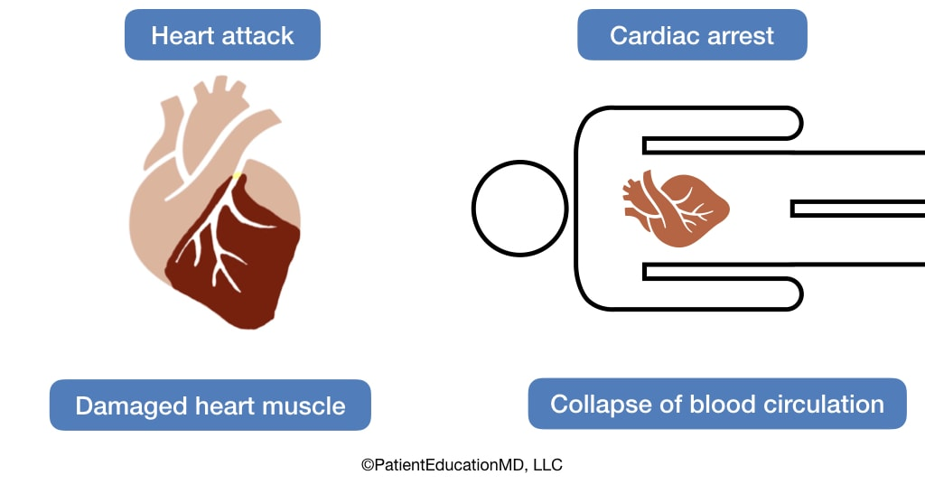 A diagram showing how a heart attack causes damaged heart muscles while cardiac arrest leads to a collapse of blood circulation.