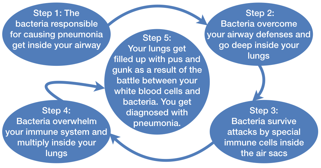 Want to learn how you get pneumonia? Discover the five steps involved.