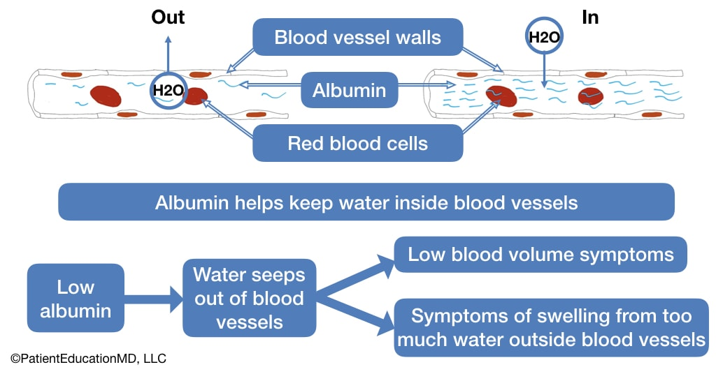 A diagram showing how low albumin leads to water outside the blood vessels, causing swelling.