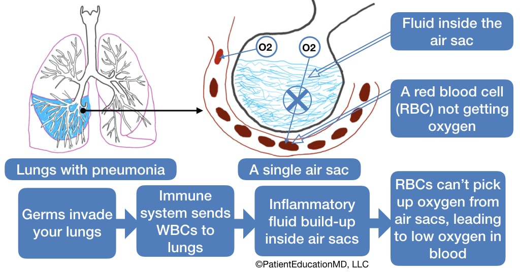 A diagram showing the process by which germs, WBCs, and inflammatory fluids lead to low oxygen in the blood.