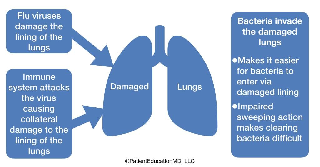 A chart showing how bacterial pneumonia develops after the flu