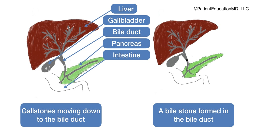 A diagram showing several organs along with gallstones moving to the bile duct as well as a bile stone formed in the bile duct.