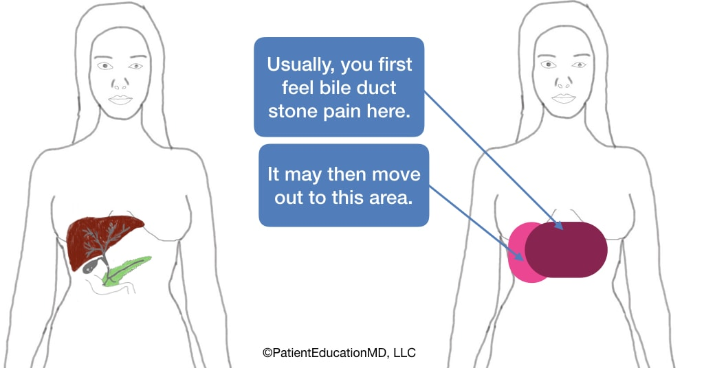 A diagram showing where you can feel bile duct stone pain and where it can move to.