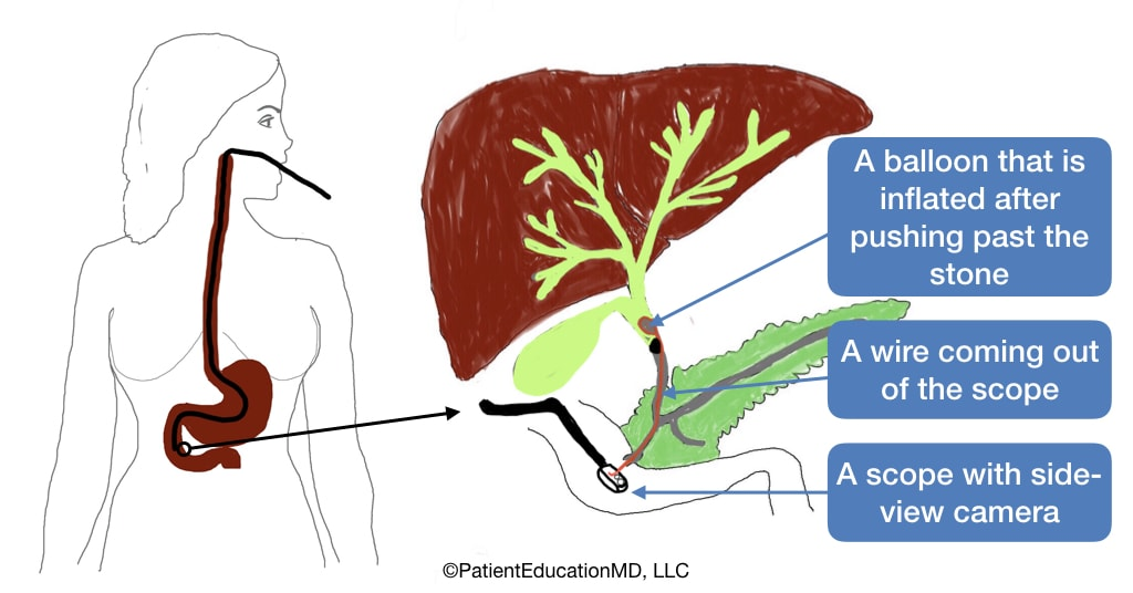 A diagram showing how ERCP treatment is done, with a wire, a scope with a side-view camera, and a balloon.