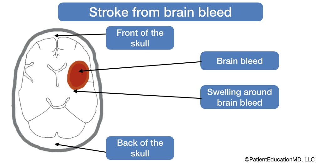 A diagram that shows a skull with brain bleed and swelling around the brain bleed.
