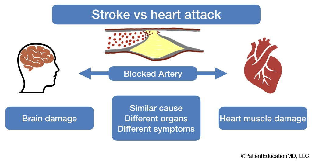 A diagram showing the different organs that strokes and heart attacks affect.