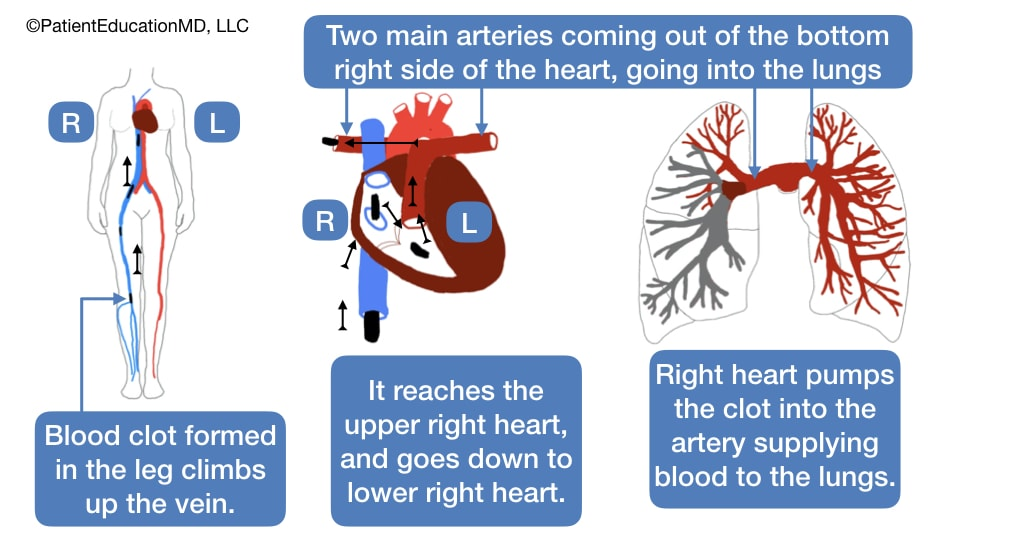 A diagram showing how a blood clot can come up from the leg to the heart, where it is pumped to the lungs.