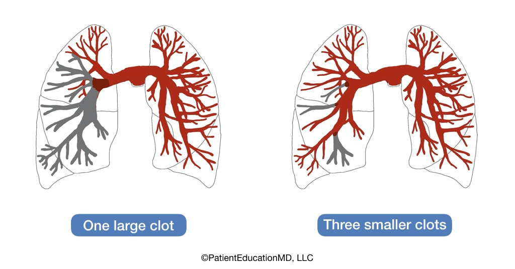 A diagram showing one large clot blocking lots of blood supply and three smaller clots blocking less blood supply.