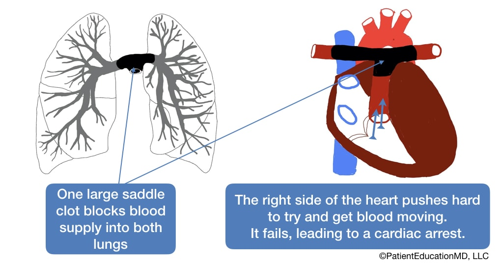 A diagram showing how the heart tries to remove a saddle clot, but fails, causing a cardiac arrest.
