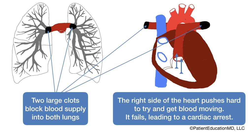 A diagram showing how the heart tries to push clots out, but fails, leading to a cardiac arrest