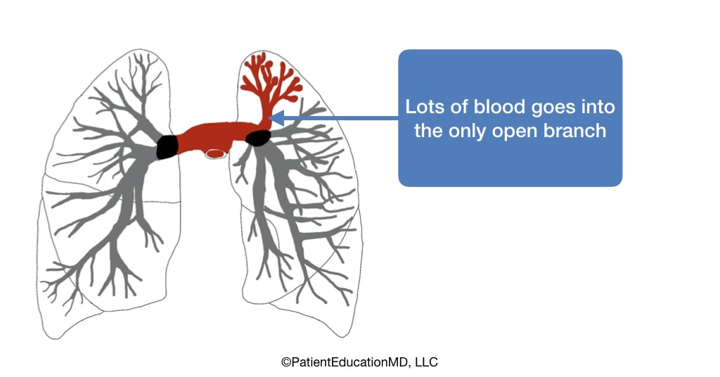 A diagram showing blocked off lungs with only one opening, where all the blood is flowing.
