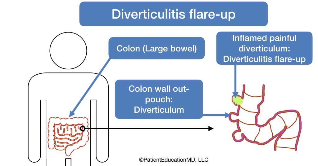 A diagram showing an inflamed diverticulum as well as the colon.
