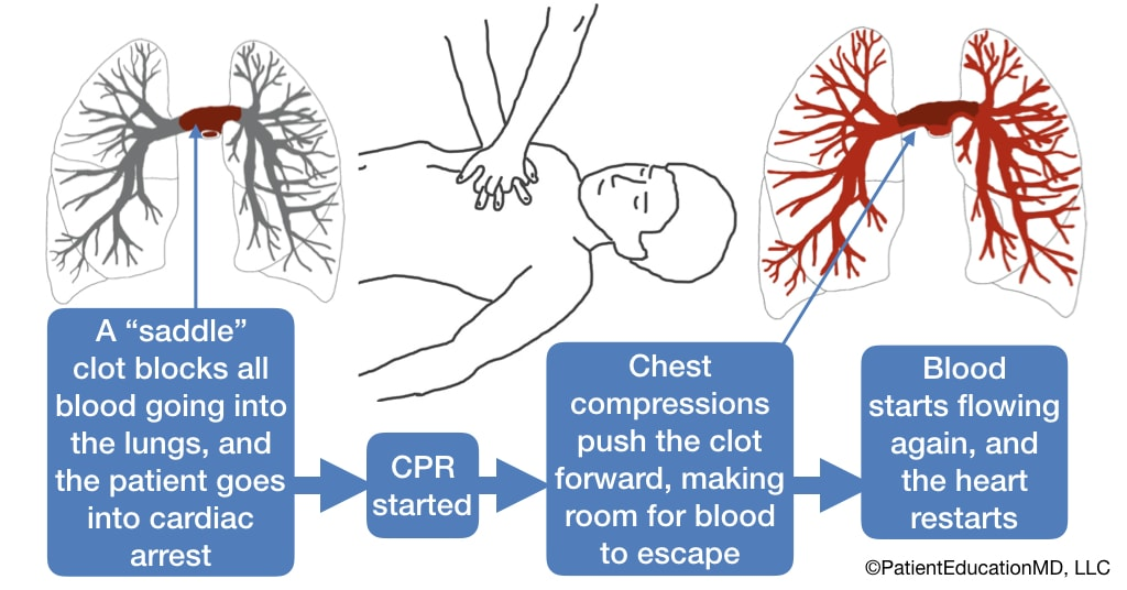 A diagram that shows how CPR and chest compressions help push the clot forward so that blood can flow again.