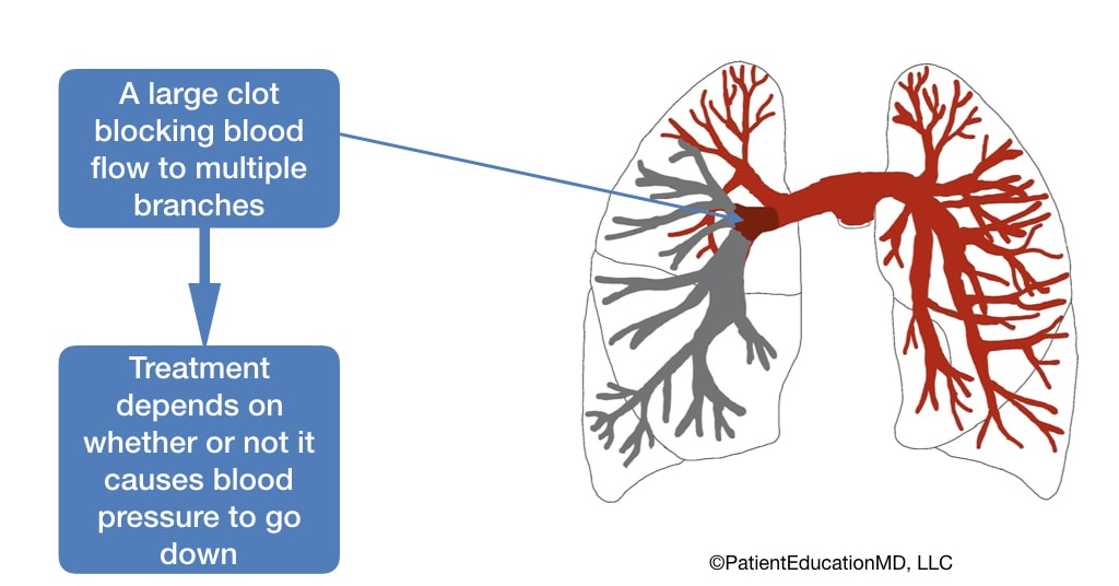 A diagram showing a large clot and how the treatment depends on whether or not the clot lowers blood pressure.